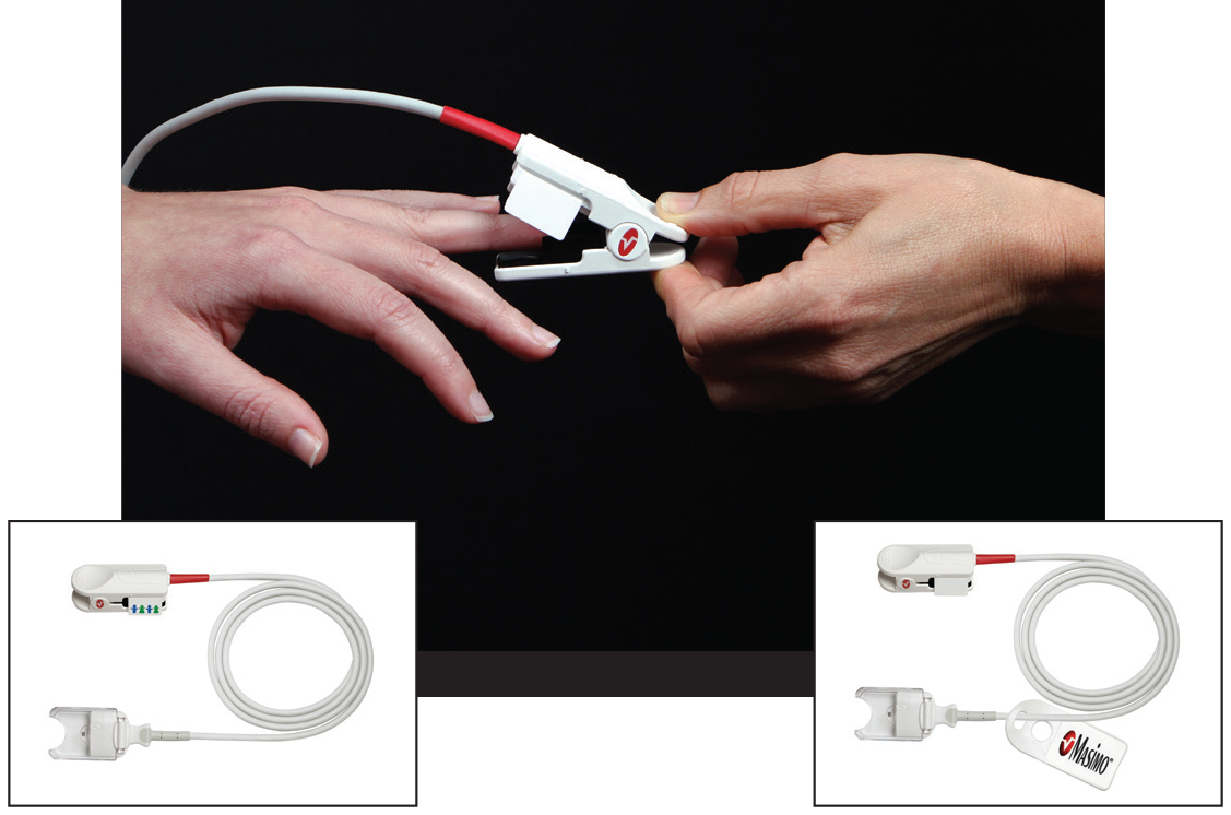 placing noninvasive Masimo Pronto sensor on patient's finger